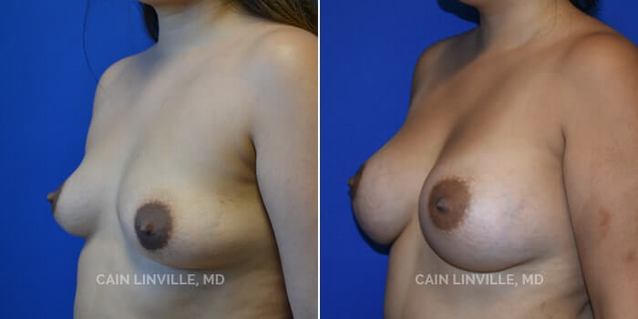 Breast Augmentation Before And After Patient 8B