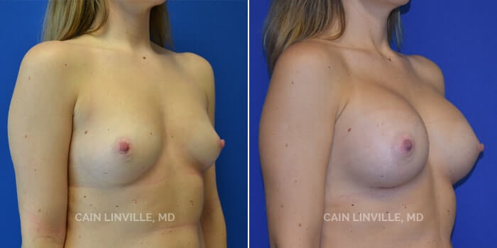 Breast Augmentation Before And After Patient 7B
