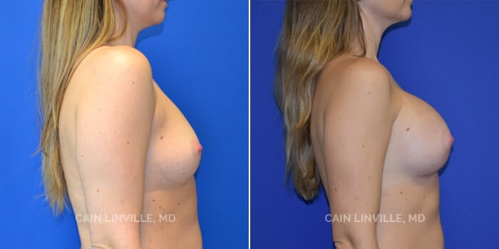 Breast Augmentation Before And After Patient 7C