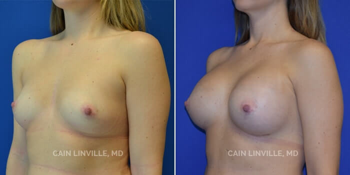 Breast Augmentation Before And After Patient 7D