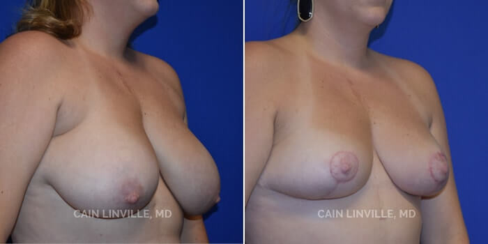 Breast Reduction Before And After Patient 3A