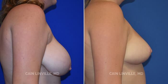 Breast Reduction Before And After Patient 3B