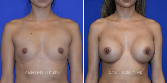Breast Augmentation Before And After Patient 5A