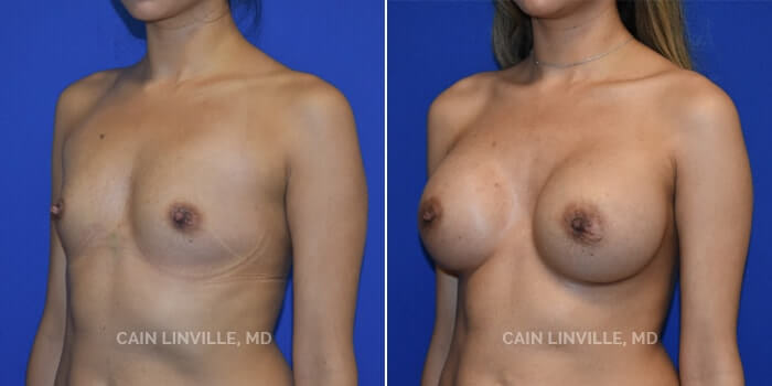 Breast Augmentation Before And After Patient 5B