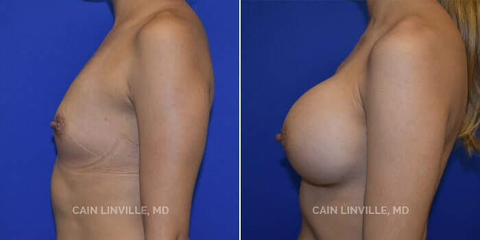 Breast Augmentation Before And After Patient 5C