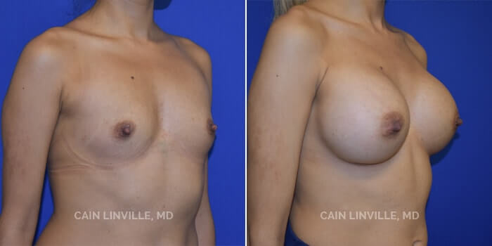Breast Augmentation Before And After Patient 5D