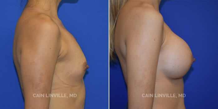 Breast Augmentation Before And After Patient 5E
