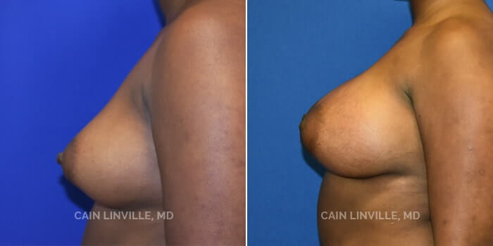 Breast Augmentation Before And After Patient 11C