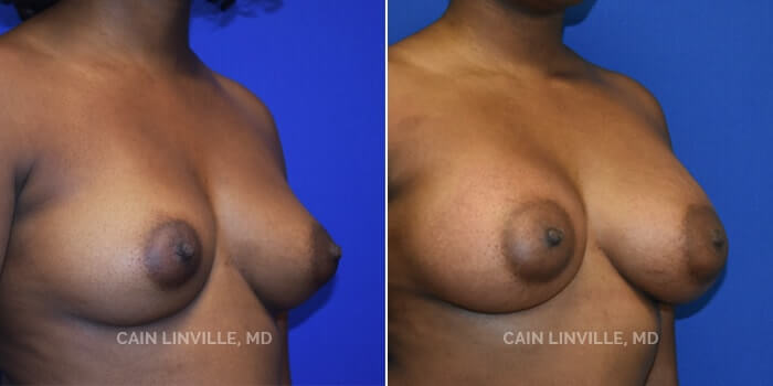 Breast Augmentation Before And After Patient 11D