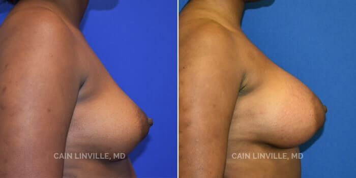 Breast Augmentation Before And After Patient 11E
