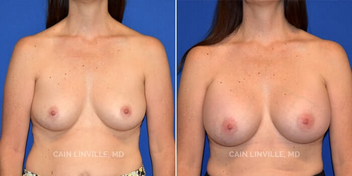 Breast Augmentation Before And After Patient 12A