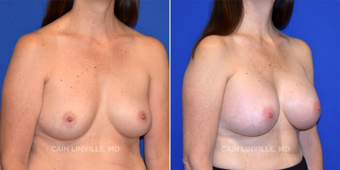Breast Augmentation Before And After Patient 12B