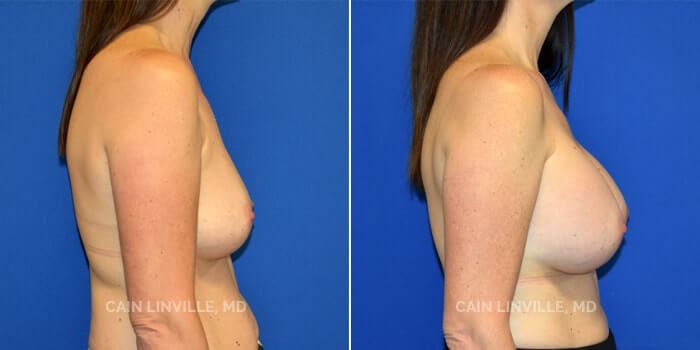 Breast Augmentation Before And After Patient 12C