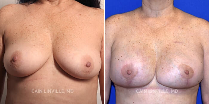 Breast Reconstruction Before And After Patient 2A