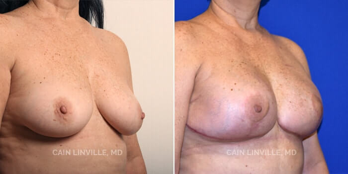 Breast Reconstruction Before And After Patient 2B
