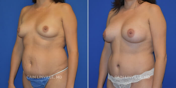Mommy Makeover Before And After Patient 2B