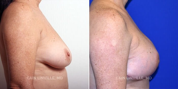 Breast Reconstruction Before And After Patient 2C