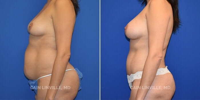 Mommy Makeover Before And After Patient 2C