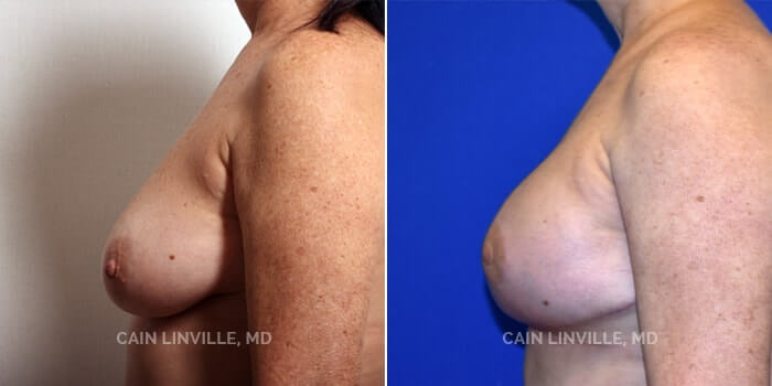 Breast Reconstruction Before And After Patient 2D