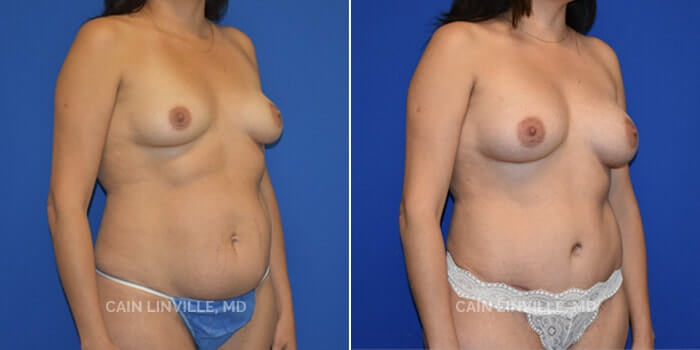Mommy Makeover Before And After Patient 2D