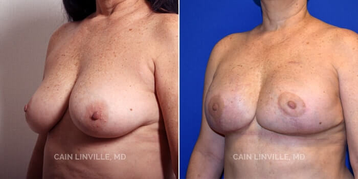 Breast Reconstruction Before And After Patient 2E