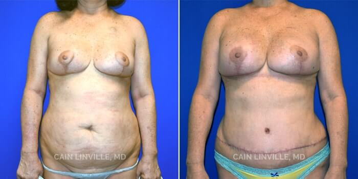 Breast Reconstruction Before And After Patient 2F