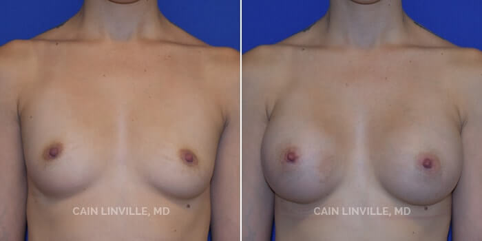 Breast Augmentation Before And After Patient 6A