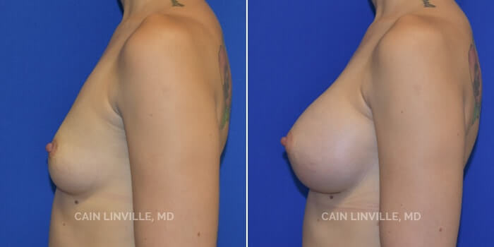 Breast Augmentation Before And After Patient 6C