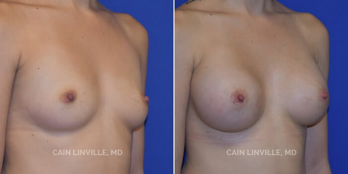 Breast Augmentation Before And After Patient 6D