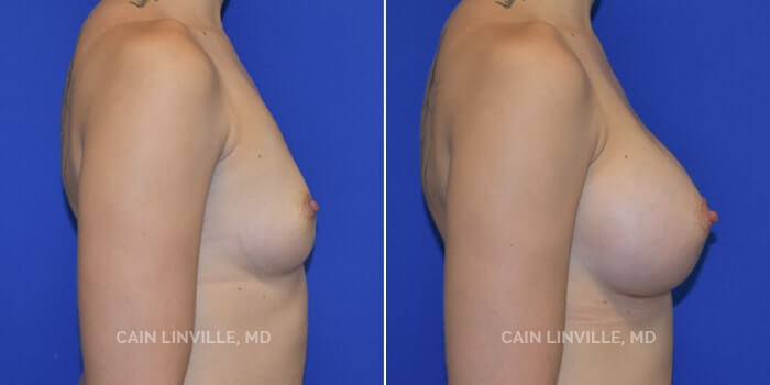Breast Augmentation Before And After Patient 6E