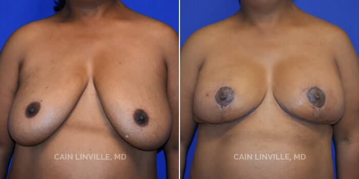 Breast Reduction Before And After Patient 4A