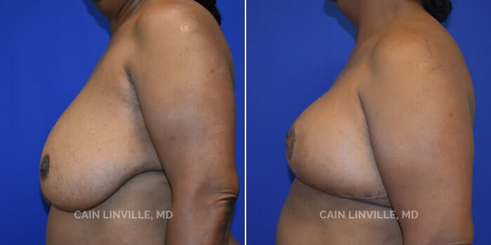 Breast Reduction Before And After Patient 4C