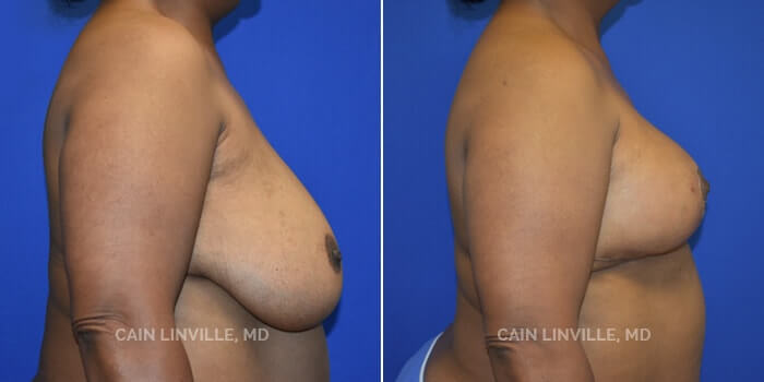 Breast Reduction Before And After Patient 4E