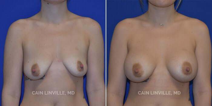 Breast Augmentation Before And After Patient 18A