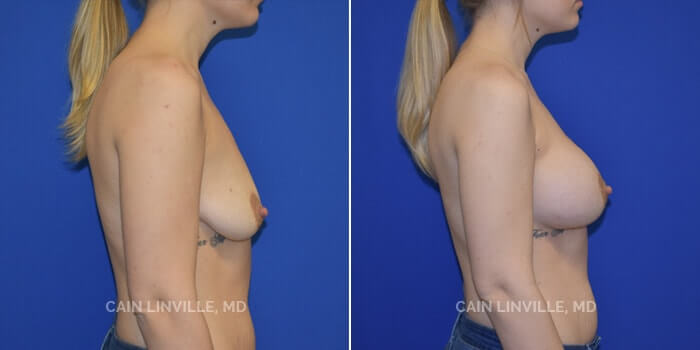 Breast Augmentation Before And After Patient 18B