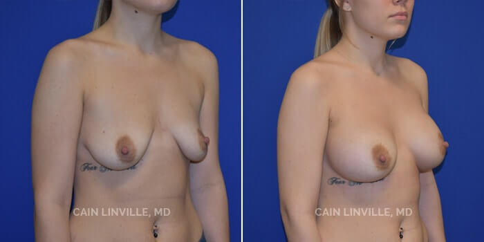 Breast Augmentation Before And After Patient 18C