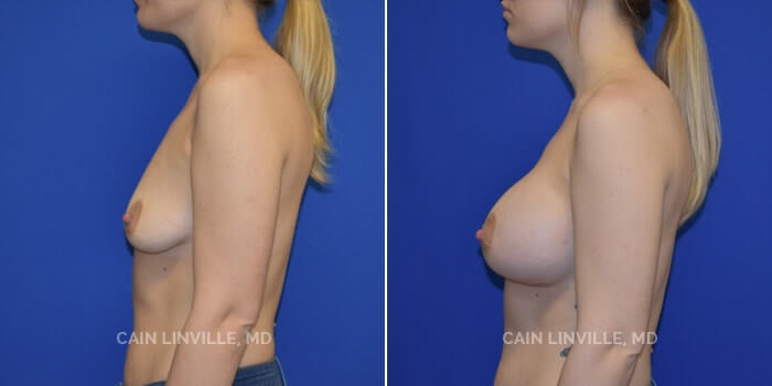 Breast Augmentation Before And After Patient 18D
