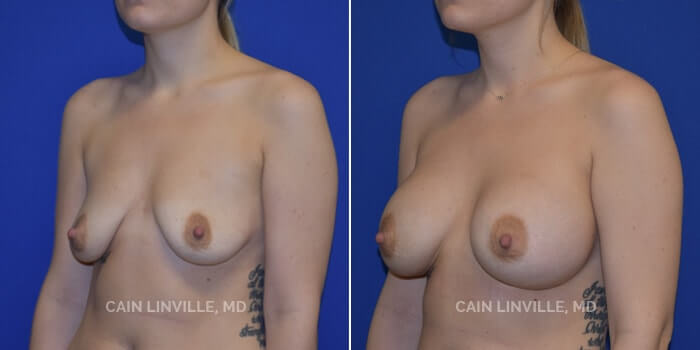 Breast Augmentation Before And After Patient 18E