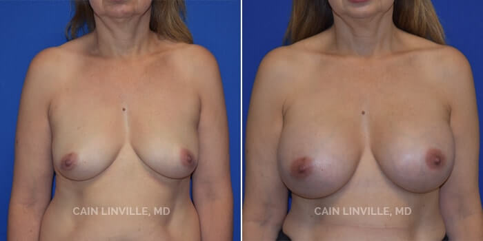 Breast Augmentation Before And After Patient 13A