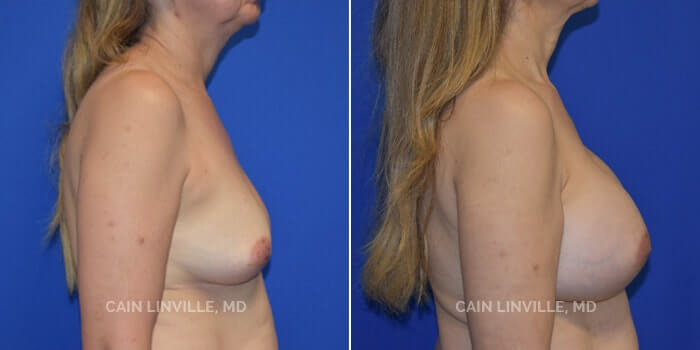Breast Augmentation Before And After Patient 13B