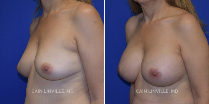Breast Augmentation Before And After Patient 13C