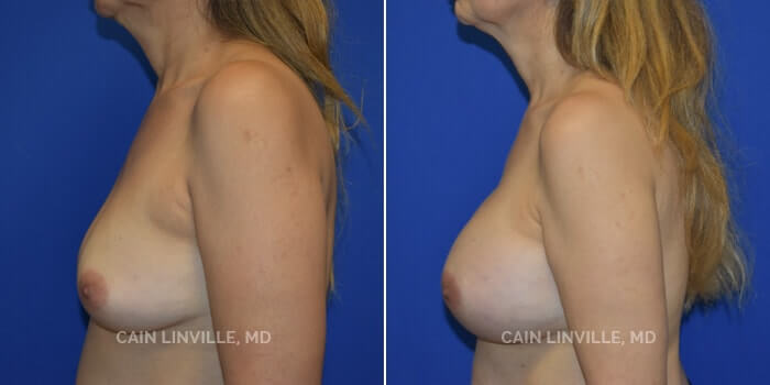 Breast Augmentation Before And After Patient 13D