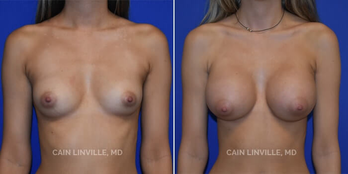 Breast Augmentation Before And After Patient 14A
