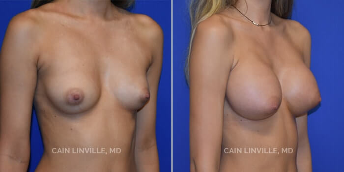 Breast Augmentation Before And After Patient 14B