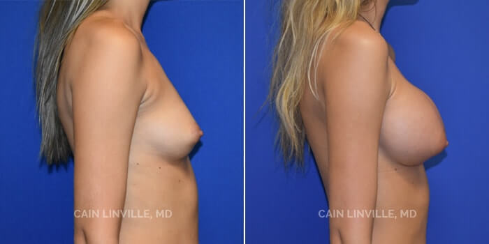 Breast Augmentation Before And After Patient 14C