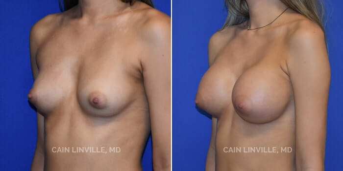 Breast Augmentation Before And After Patient 14D