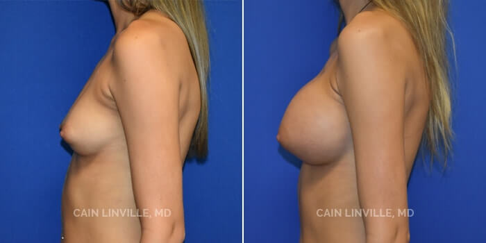 Breast Augmentation Before And After Patient 14E