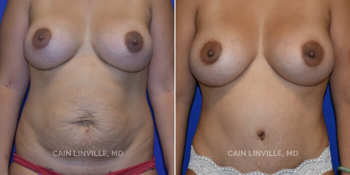 Mommy Makeover Before And After Patient 3A