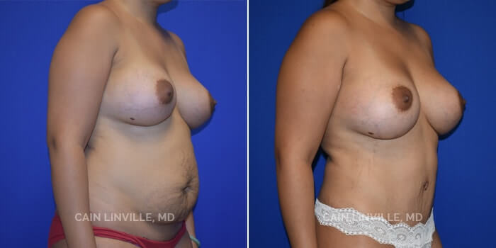 Mommy Makeover Before And After Patient 3D