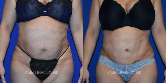 Lipo Tummy Tuck Before And After Patient 6A